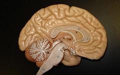 Hersenonderzoek helpt gedragsproblemen beter behandelen